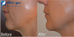 non-surgical cosmetic procedure,non-surgical face lift,non-surgical neck lift,face and neck tightening,non-invasive face and neck lift,anti-aging therapy
