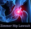 Zimmer Hip Replacement Lawsuit Filed by Wright & Schulte on Behalf...