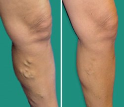 Chicago Vein Care Center is launching a new social media campaign to educate the public about varicose veins
