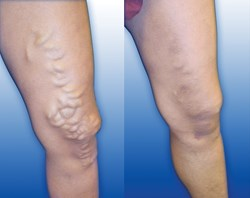 Siragusa Vein and Vascular is launching a new health campaign via social media to educate the public on the causes of varicose veins