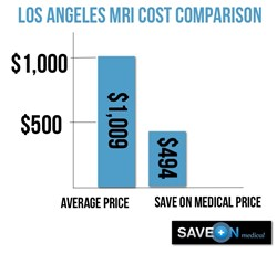 Los Angeles MRI Cost Comparison