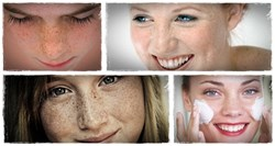 11 tips on how to remove freckles naturally with good lifestyle and foods