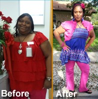 Gastric Sleeve Gastrectomy Surgery San Antonio Success Story for TBS