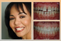 Porcelian Veneers NJ