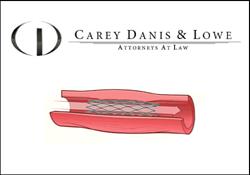 Carey Danis & Lowe | Bard LifeStent Recall