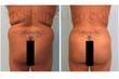 liposuction, smart lipo, liposuction of the abdomen, myshape lipo, trevor schmidt, fat transfer, fat transfer to butt, brazilian butt lift, natural butt augmentation