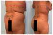 liposuction, smart lipo, liposuction of the abdomen, myshape lipo, trevor schmidt, fat transfer, fat transfer to butt, brazilian butt lift, natural butt augmentation
