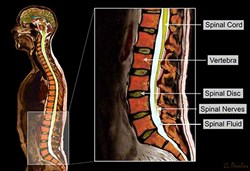 This image shows two Color MRI images in one. The larger Color MRI on the left shows the whole body and references the low back. The image on the right shows details of the important anatomical structures of the low back.