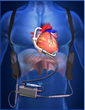 This image shows the new HeartAssist5 ventricular assist device and placement of the device to support heart function.