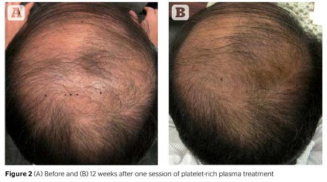 Nationally Recognized Hair Loss Expert Dr Alan J Bauman