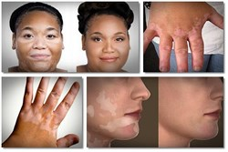14 home remedies for vitiligo