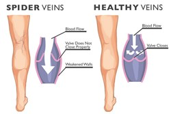 Chicago Vein Care Center is launching a new health campaign to educate the public about spider veins.