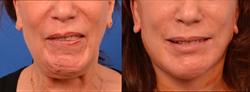 selective-neurolysis-facial-paralysis