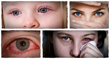 18 home remedies for pink eye