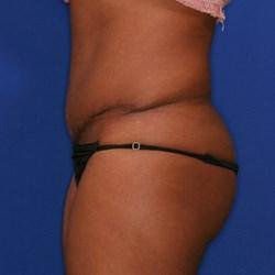 Orange County Tummy Tuck