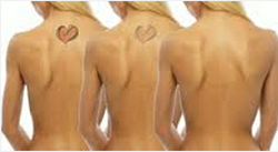 tattoo removal,tattoo regret,regrettable tattoos,