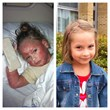Child Warrior Abby Overcomes Steroid Induced Eczema