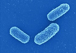 Klebsiella michiganensis (K. michiganensis).