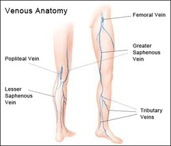 Novant Health Vein Specialists is launching an educational campaign to explain vein disease in simple terms.