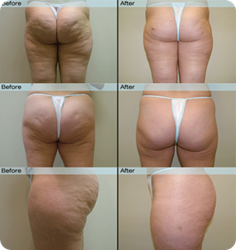 Truth About Cellulite Reviews - Before and After Results