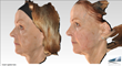 Voluma Liquid Facelift Side View