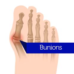 Bunion-surgery