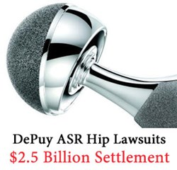 For information on this DePuy ASR Hip Settlement or if you have experienced DePuy ASR hip replacement side effects contact Wright & Schulte at www.yourlegalhelp.com, or by call 1-800-399-0795