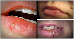 13 tips on how to get rid of cold sores naturally