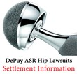 DePuy ASR Hip Lawsuit Settlement News: Latest Information on the...