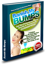 home remedies for keratosis pilaris, banish my bumps