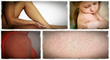 home remedies for keratosis pilaris banish my bumps help