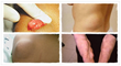 lipoma removal cure lipoma can