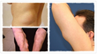 lipoma removal cure lipoma help