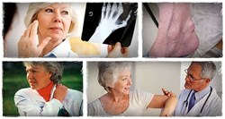 17 homeopathic remedies for rheumatoid arthritis