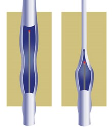 New York Vein Treatment Center is launching a new health campaign via social media about endovenous LASER therapy