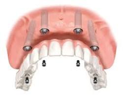 Adarve Prosthodontics All on 4