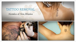 17 tips on how to remove tattoos at home