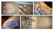 17 tips on how to remove tattoos at home help