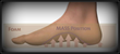 MASS position gait referenced foot impression; semi-weight-bearing