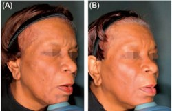 64-year-old female. Results portray a fresher, more even skin surface, with corrections to scarring and skin tone imperfections - skin type V.