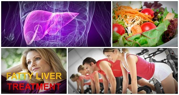 Remedies for reversing fatty liver disease and obesity vinamy