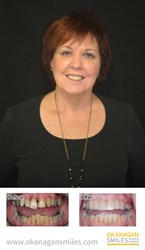 June Swenson smile makeover from Okanagan Smiles Kelowna Dental Clinic