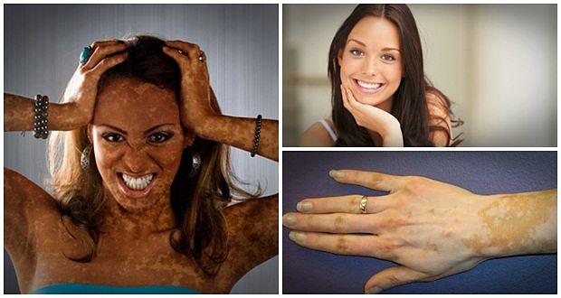 Natural Vitiligo Treatment System Free Ebook