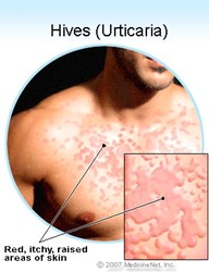 Oxyhives Hives Treatment