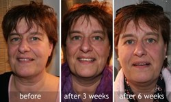Facelift Gym Eye Dark Circles