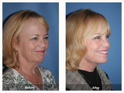 Before and After Surgery Photo of Facelift Patient Face and Neck Lift Natural Lift Board Certified Facial Plastic Surgery Orange County California
