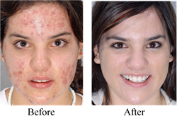 Miracle Makeup Applicators - Articles