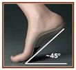 Arizona Orthotics Debunks Common Myth That All Custom Foot Orthotics Are Created Equal