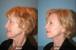 Dr. Kevin Sadati's Patient with Natural Facelift