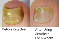 Zeta Clear Toenail Fungal Infection Relief
